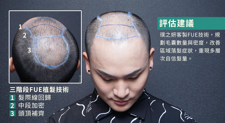 植髮案例百川02