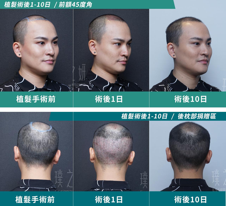 植髮案例百川06