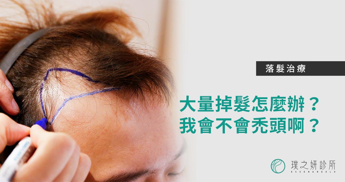 轉貼顯示圖_落髮治療