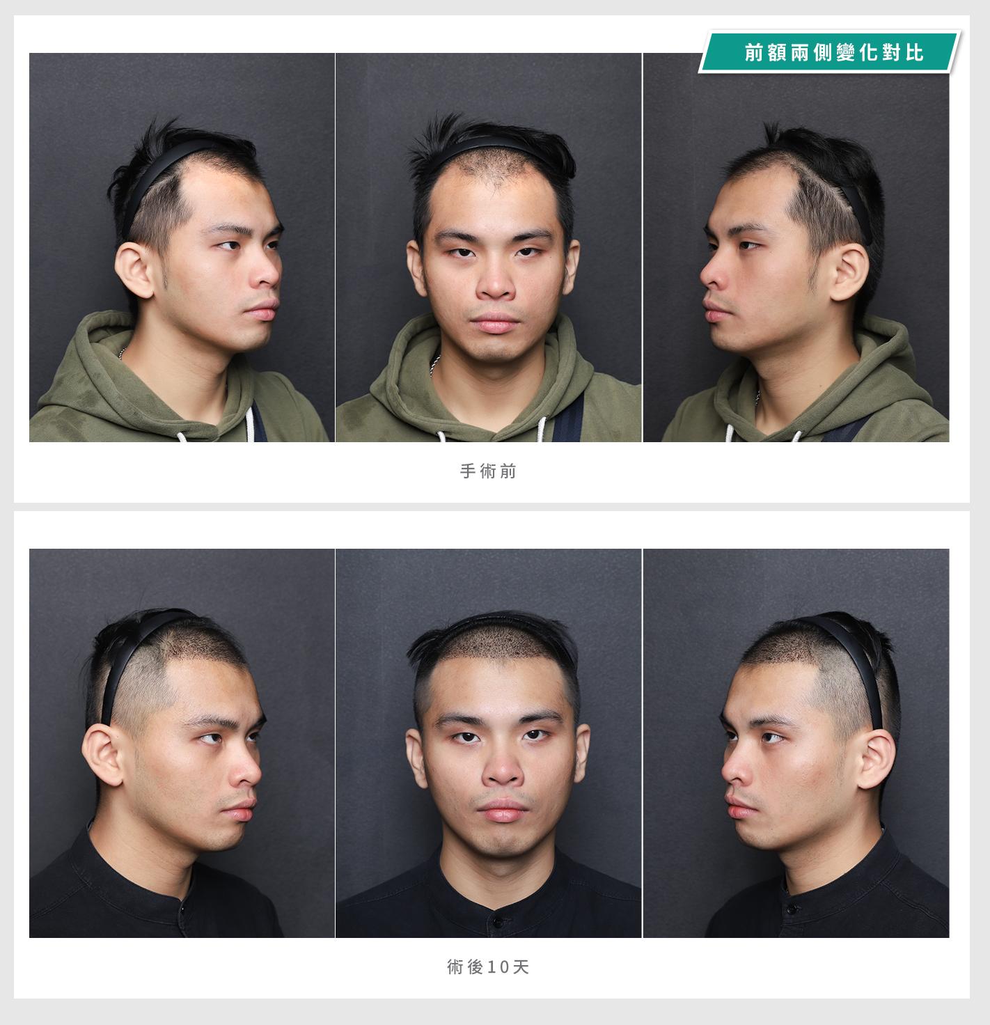 FUE植髮手術05