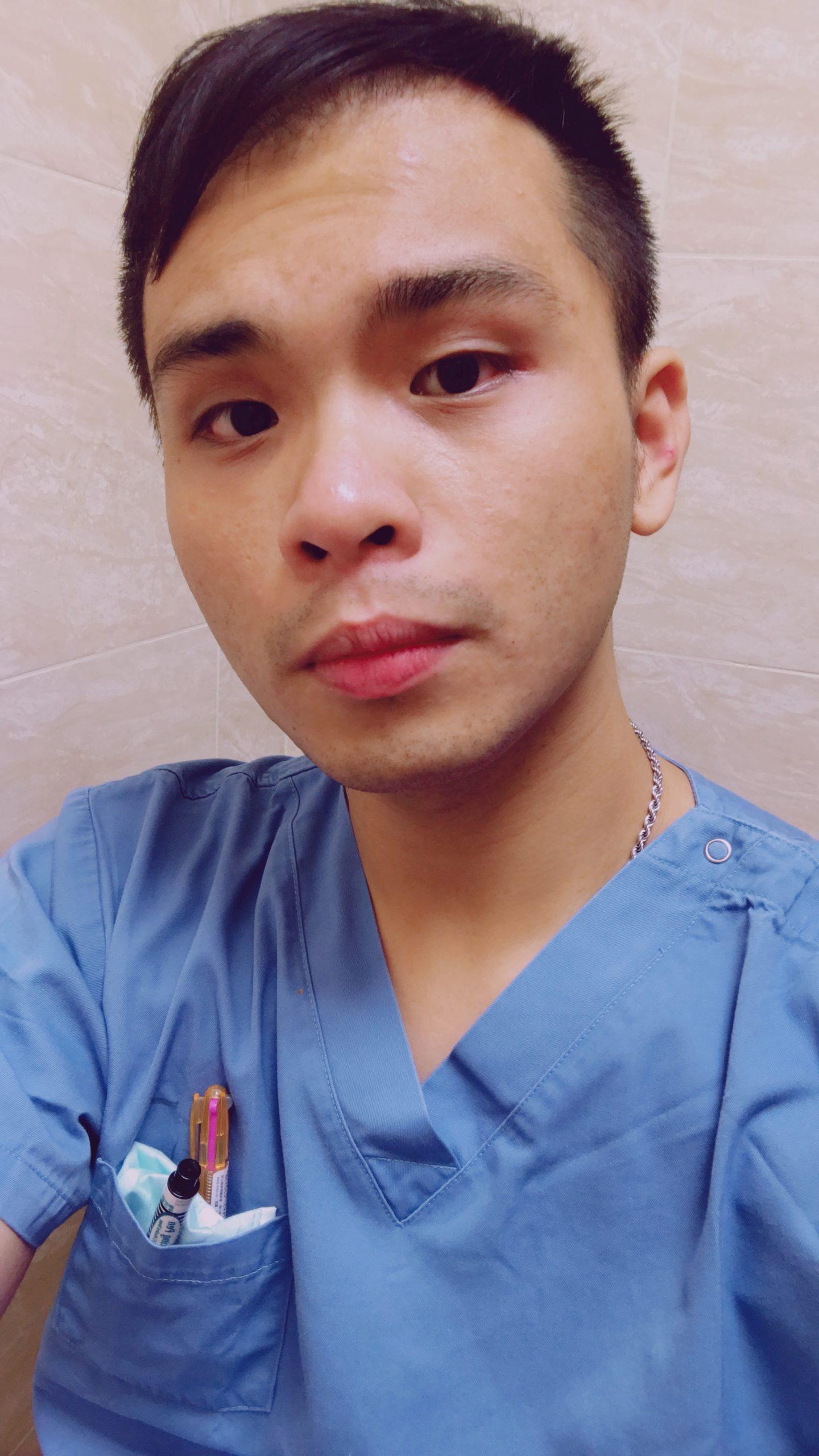 FUE植髮手術07