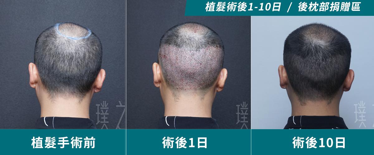 產後落髮3