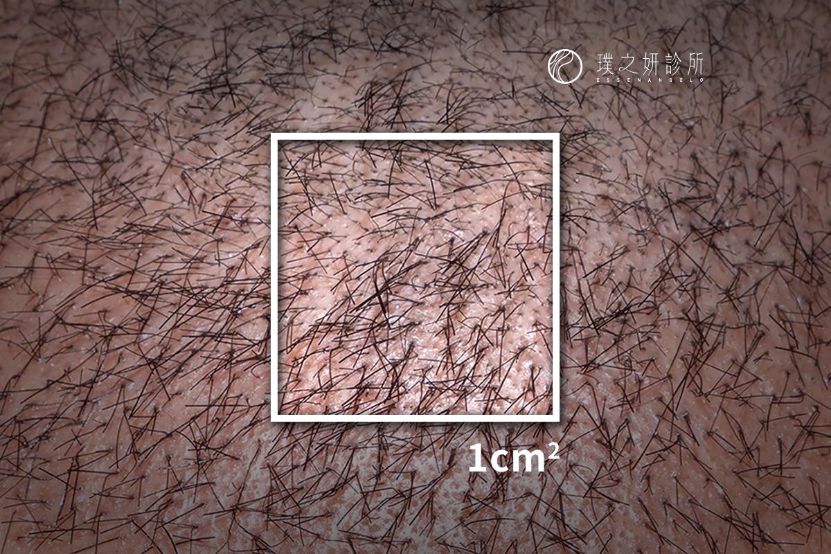 植髮密度1