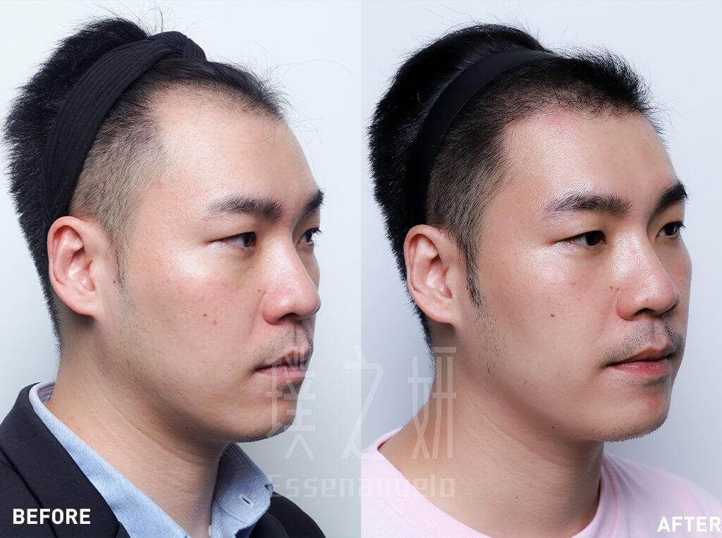 素人 賴柏宇 植髮 (1)