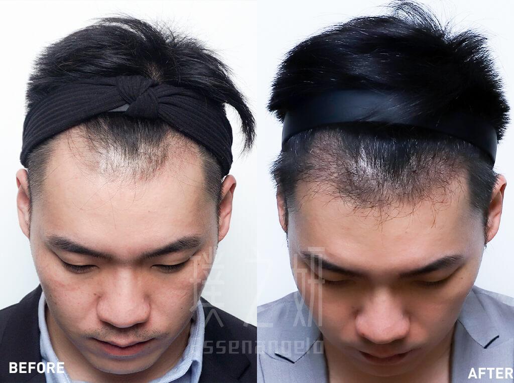 素人 賴柏宇 植髮2 (1)